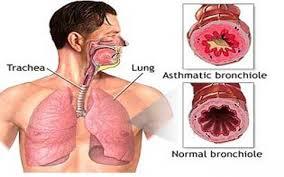 آسم، خوراکی ها، ورزش های مفید و مضر برای آسم